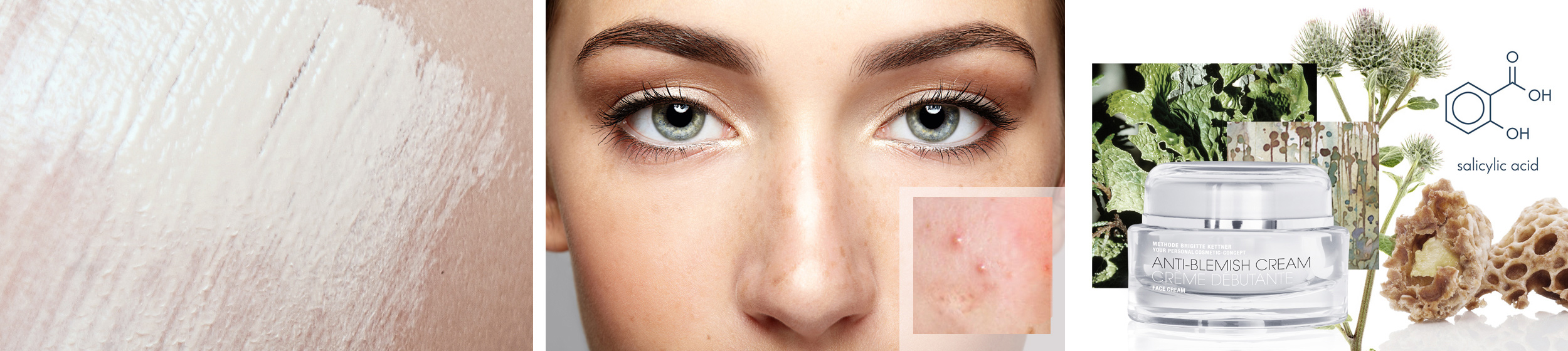 Unreinheiten, zu Akne neigende Haut