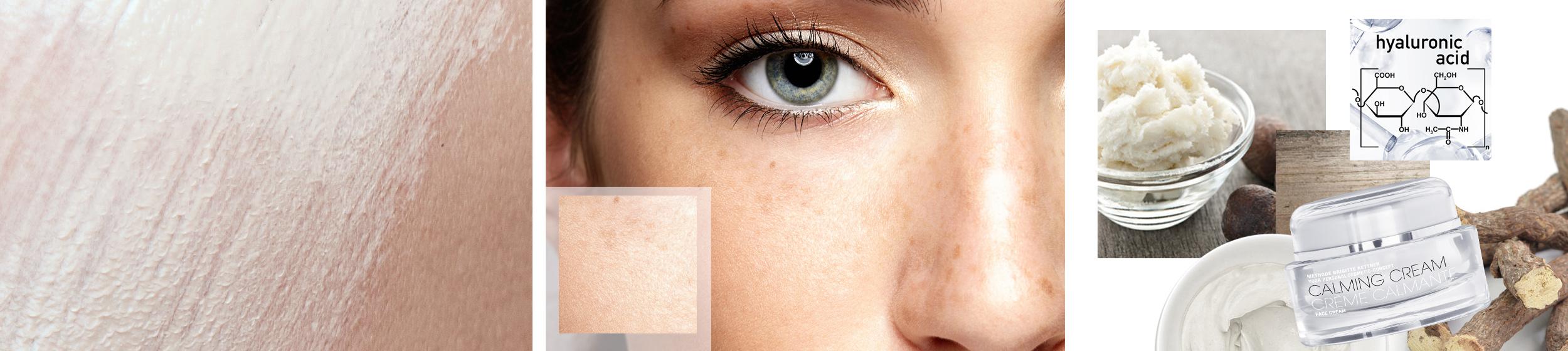 Type de peau peau seche